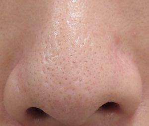 の なくす 鼻 毛穴 方法 を