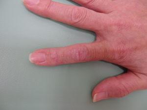 かゆい 手の甲 湿疹